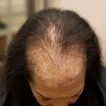 Female Client With Genetic Thinning Hair Loss